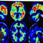 ¿Cáncer o Alzheimer? Sufrir uno protege del otro.