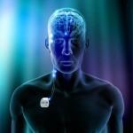 ¿Puede la estimulación cerebral profunda (ECP) ser útil en la enfermedad de Alzheimer?