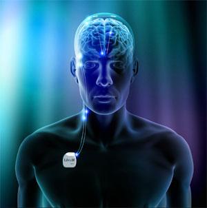 estimulacion-cerebral